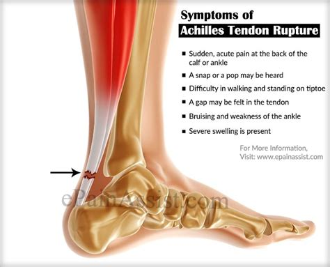 ankle joint effusion and ruptured archilles tendon picture 7