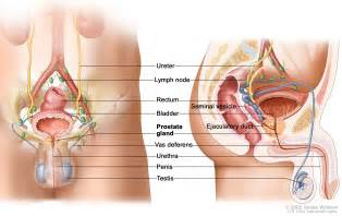 Type of treatment prostate cancer in stroke victim picture 7