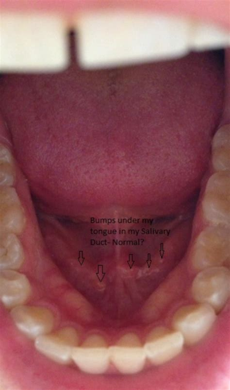 wart underneath tongue picture 14