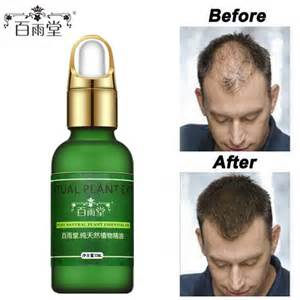 name and cost of hair loss pills products picture 10