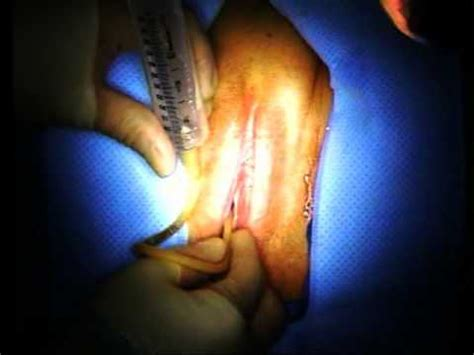 insert catheter female video picture 5