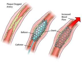 stents and bacterial infections picture 6