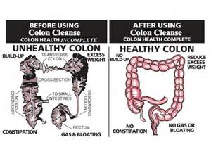does cleaning colon out help you to loose picture 2