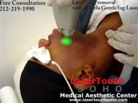 revitol hair removal and african american picture 12