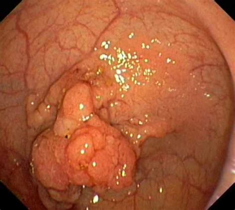 pictures of malignant colon polyps picture 7