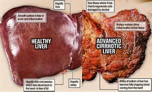 solutions for liver problems picture 7