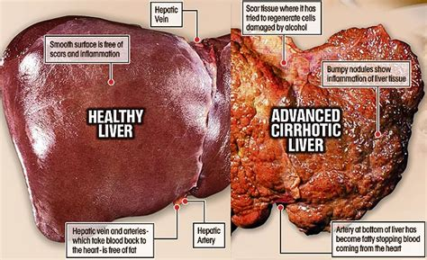 respiratory infections cirrhosis of liver picture 5
