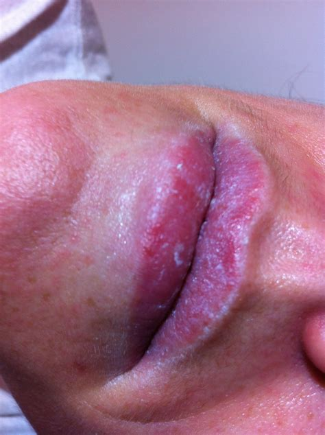 Pictures of fordyce's conditions on the upper lip picture 5
