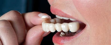 los angeles teeth whitening picture 5