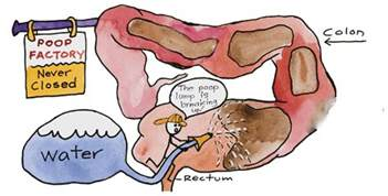 are colon cleansers safe while nursing picture 6