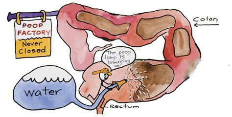 colon cancer out come picture 1