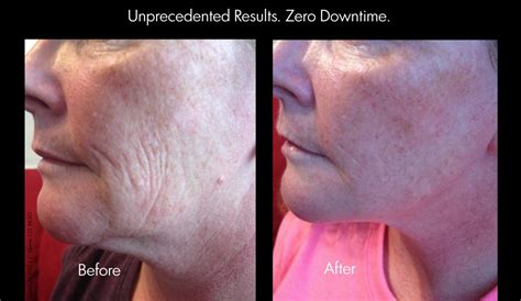 an skin tightening laser nj picture 3
