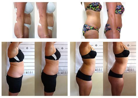 reviews of bay state fat loss picture 16