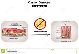 intestinal vampire fungus treatment picture 7