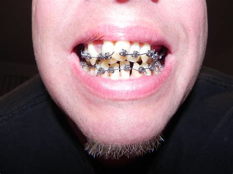 taking out your back teeth picture 1