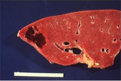 causes a liver hemangioma picture 9