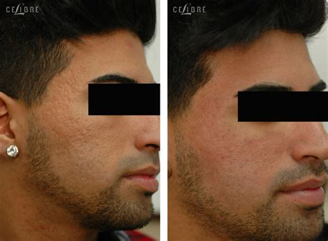 acne doctors in torrance picture 11