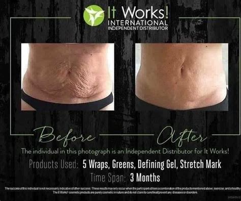 reduce stretch marks picture 9