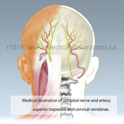 occipital neurectomy surgery picture 3