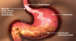 ulcer pain relief picture 9