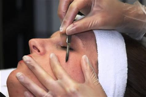 acne scarring treatment picture 18