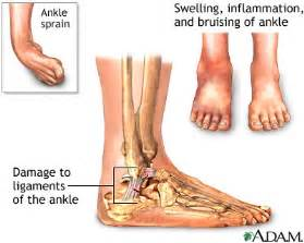 no appee weight loss swollen foot are symptoms of picture 11