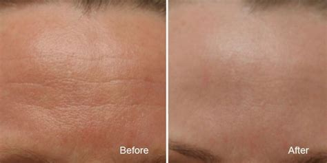 treatments used with the obagi nu derm skin picture 7