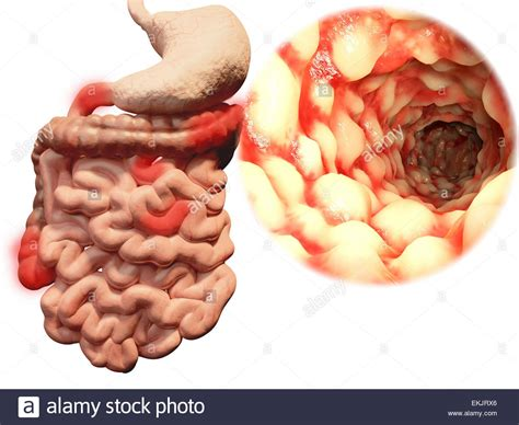 constipation and colon diseases picture 10