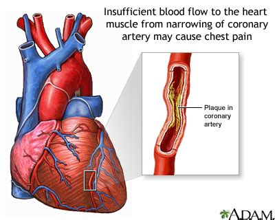 whay does having high increased blood flow to picture 2
