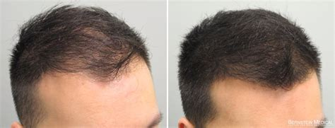 propecia for hair loss picture 2