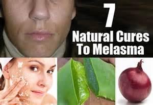 herbal remedies melasma picture 1