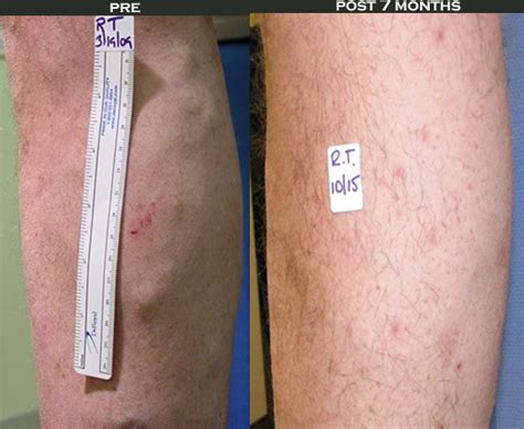 cellulite treatment new jersey picture 2