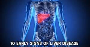 first sign of liver disease picture 17