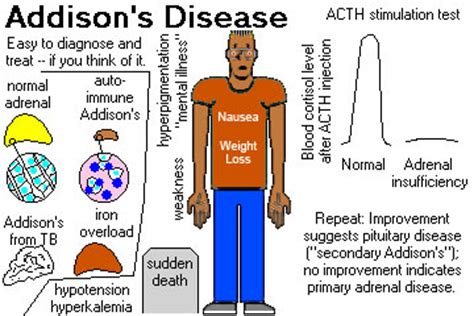 cortisone vs. weight gain picture 15