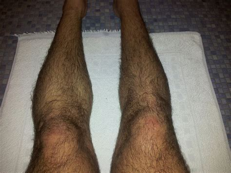 leg muscle atrophy picture 5