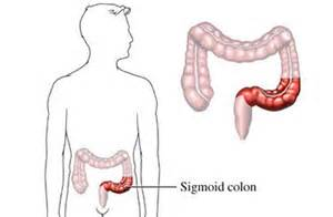 colitis of the desending colon and the sigmoid picture 2