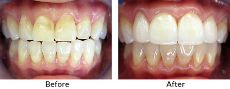 childrens teeth discoloration and veneers picture 7