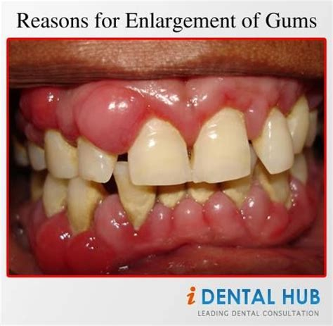 drugs affect on teeth and gums picture 7