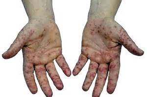 whetening hand and feet home made treatment by picture 5