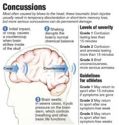 what causes vasoconstriction in head injury picture 15