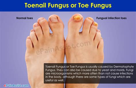 can candida cause toe nail fungus picture 4
