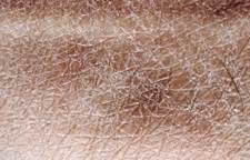 do9g has very dry skin picture 5