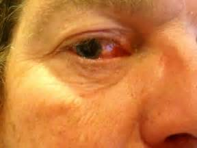 eye herpes photo picture 9