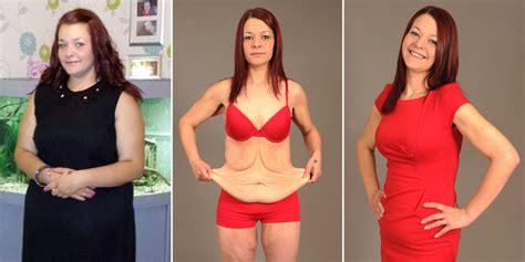 we can loose weight after remove the spleen picture 5