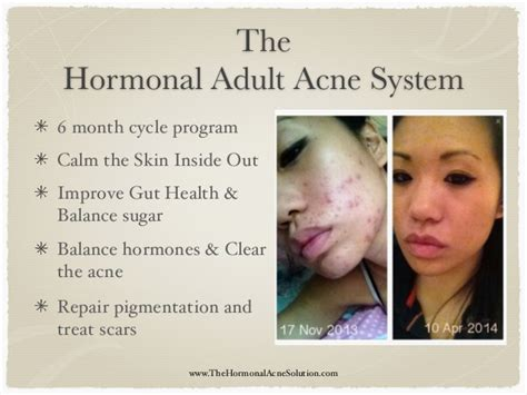 hormones for acne picture 2