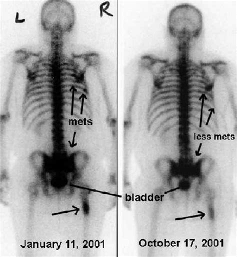 full bladder on a bone scan picture 16