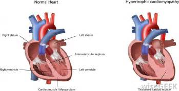 centimeter thickening of heart muscle picture 5