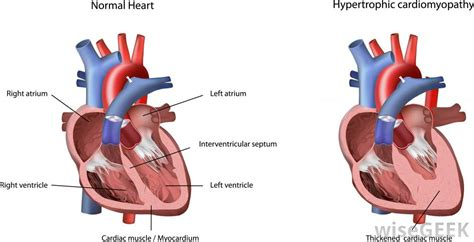 heart muscle about a centimeter thick picture 7