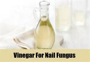 vinegar nail fungus picture 3