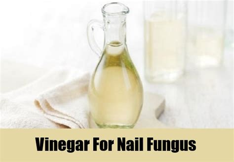 vinegar nail fungus picture 2